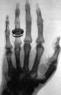255px-X-ray_by_Wilhelm_Röntgen_of_Albert_von_Kölliker's_hand_-_18960123-02